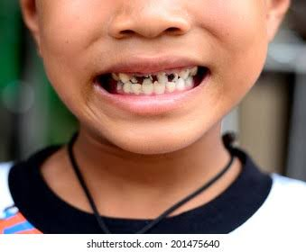 Rotten teeth kids usually experience